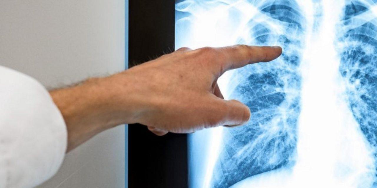 Eine KI sortiert Röntgenbilder nach Dringlichkeit