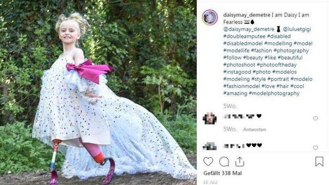 Mädchen (9) wurden als Baby beide Beine amputiert – jetzt läuft sie bei der Fashion Week mit